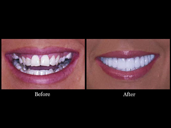 Smile Makeovers Scottsdale Affordable Denstistry
