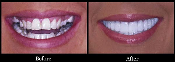 Smile Makeovers Scottsdale Affordable Cosmetic Dentistry